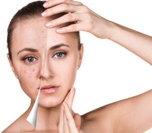 avoid summer acne breakouts