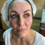 radiofrequency microneedling service tampa