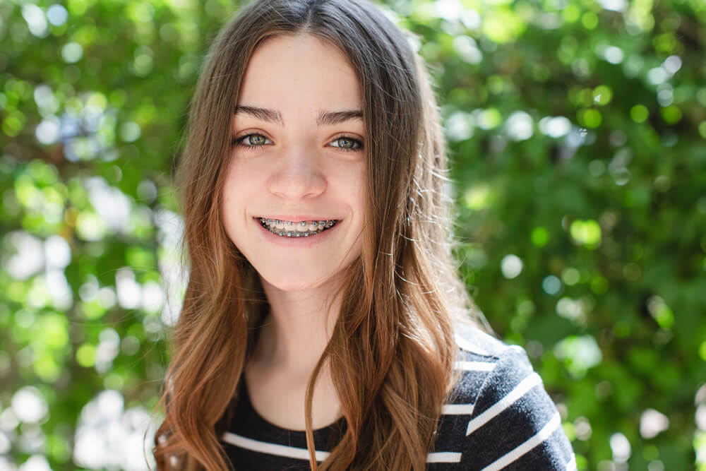 Young Orthodontics Smile Gallery