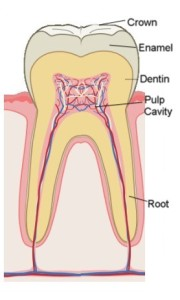 root-canal-picture