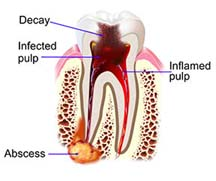 rootcanal-decay