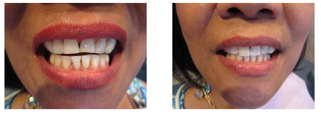 Palm Beach Dentist Before and After Work