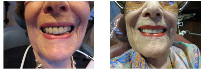 Palm Beach Dentist Before and After Work Implants, Veneers