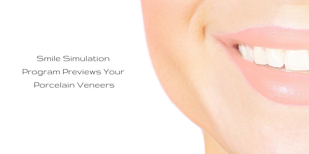 Smile Simulation Program Previews Your Porcelain Veneers