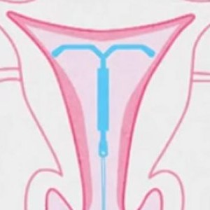 Intrauterine devices (IUDs)