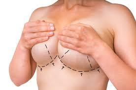 breast lift 2