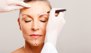 cosmetic surgery older woman