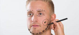 Mens face lift