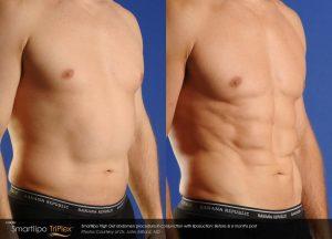 mens chest