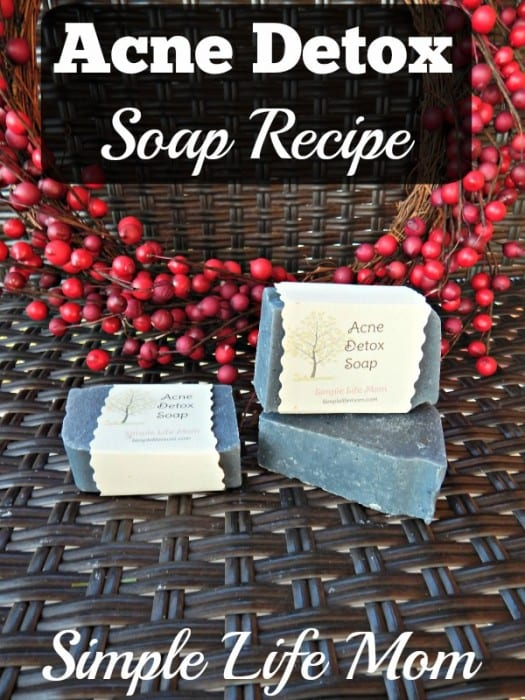 Acne Detox Soap Recipe