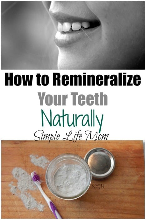 How to Remineralize Your Teeth Naturally from Simple Life Mom