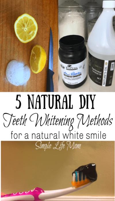 DIY Natural Teeth Whitening Methods by Simple Life Mom