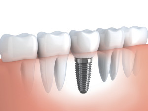 3D Drawing of Human Tooth Implant