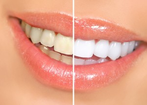 Teeth Whitening Before/After