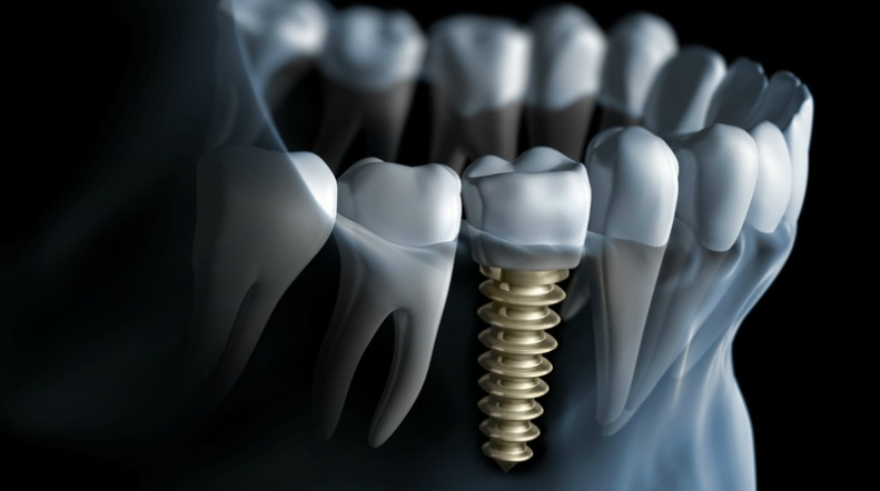 Osteointegration of Dental Implants