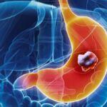 Câncer gástrico – prevenção, diagnóstico e tratamentos