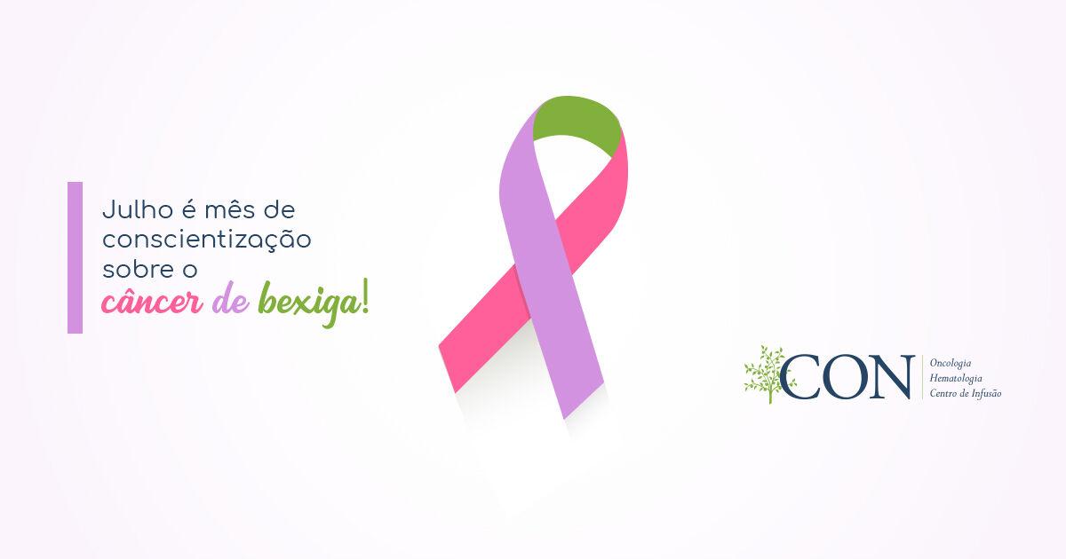 julho-e-o-mes-de-conscientizacao-e-prevencao-ao-cancer-de-bexiga-1200x630.jpg