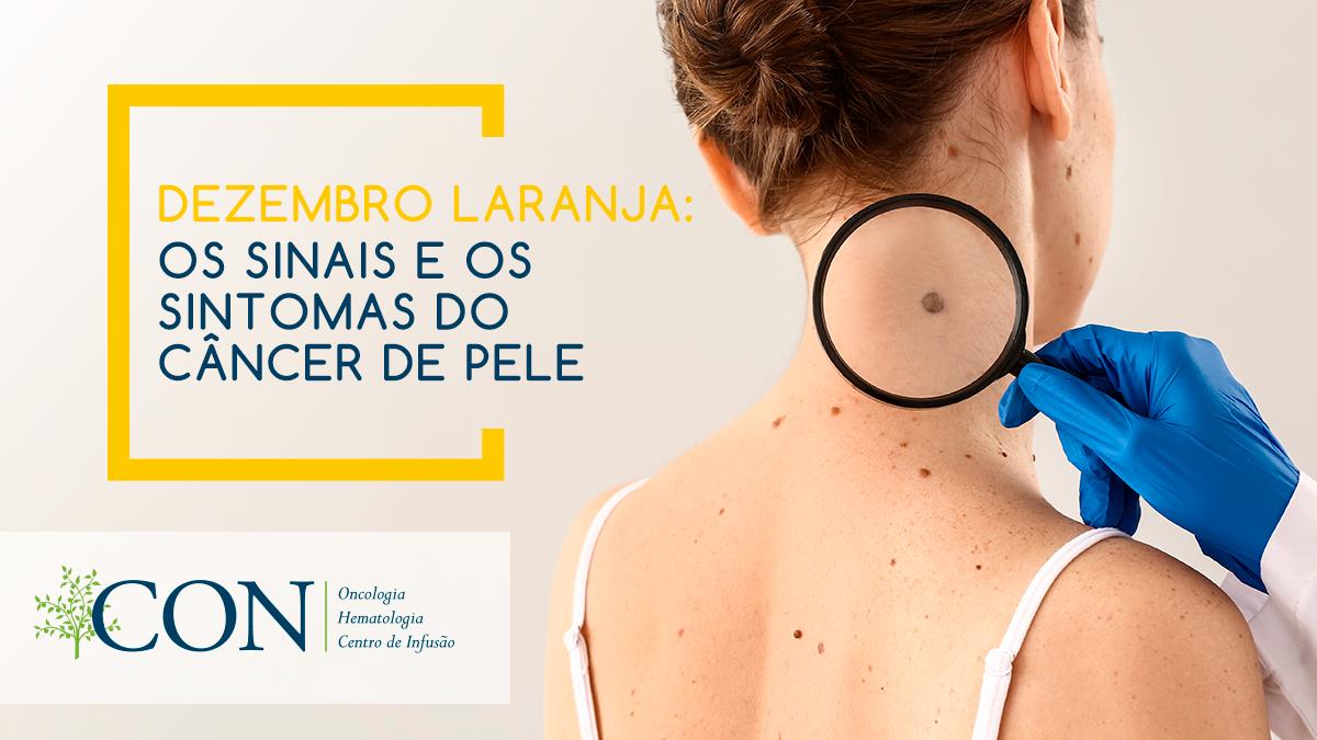 os-sinais-e-os-sintomas-do-cancer-de-pele-2.png?time=1586213724