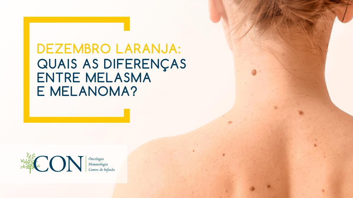 quais-as-diferencas-entre-melasma-e-melanoma.png?time=1596566083