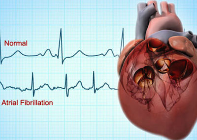 What to do about my Atrial Fibrillation?