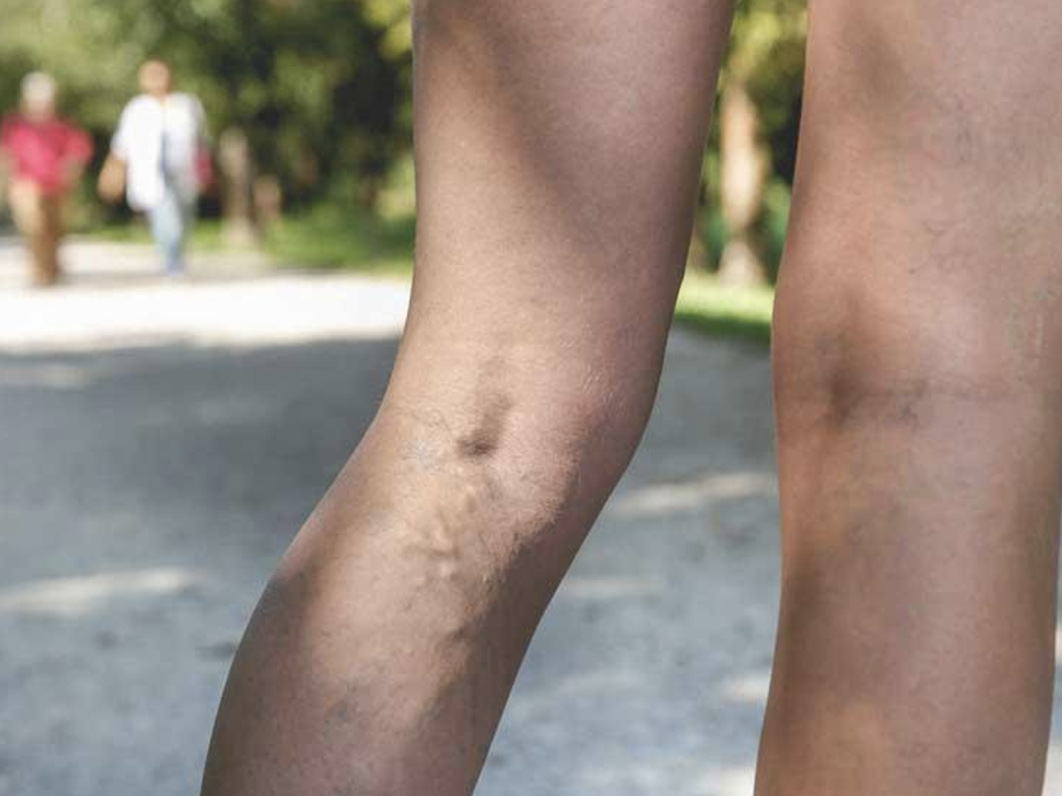 Why do varicose veins appear during pregnancy? Here are reasons why and the many treatments that are available now.