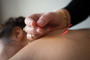 acupuncturist in hoboken nj