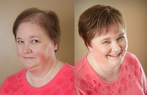hair loss from thinning hair