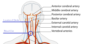 Click to enlarge - Location of blood clot and stroke