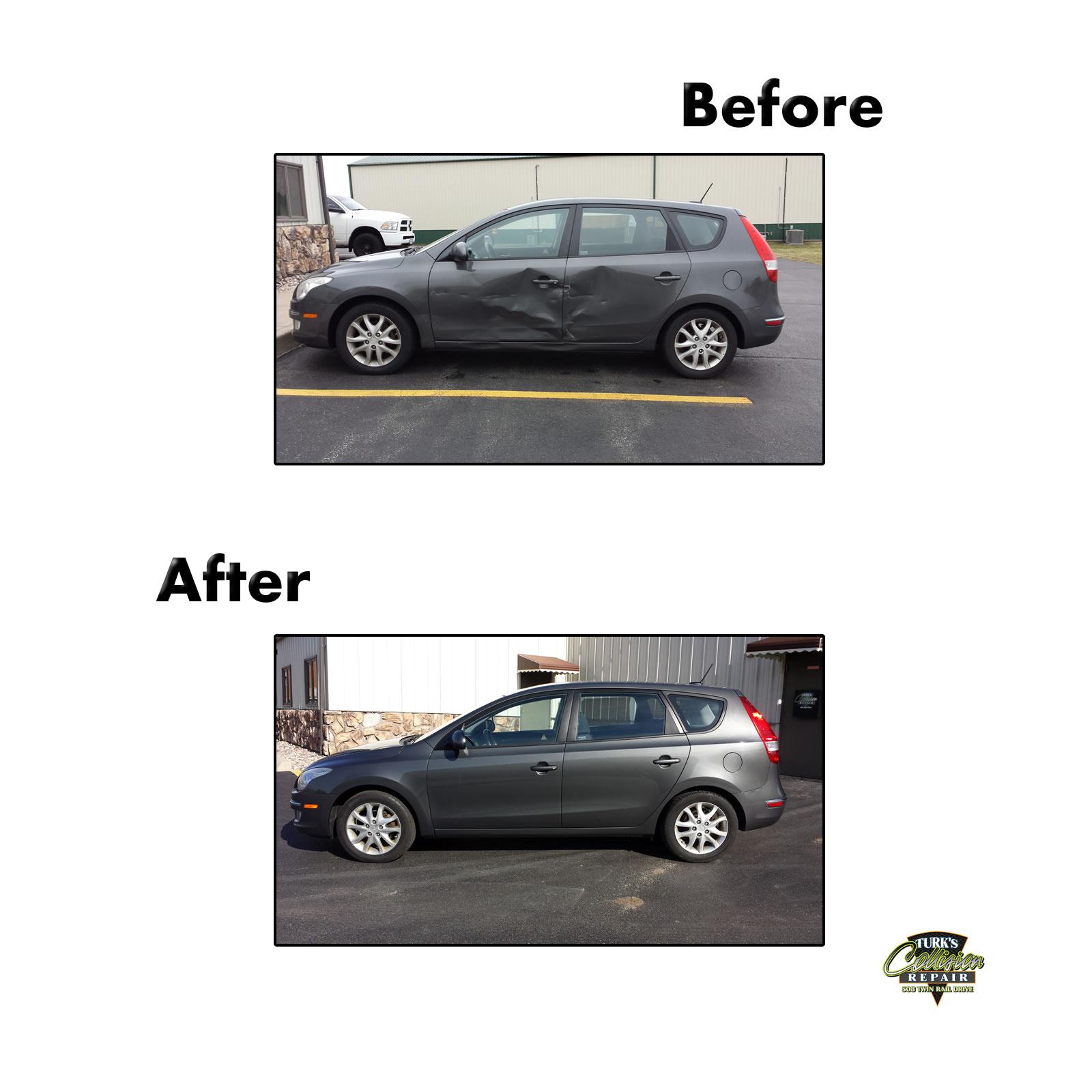Hyundai Elantra Auto Body Repair Minooka