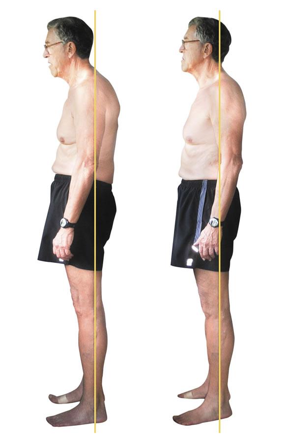 Allen  lateral