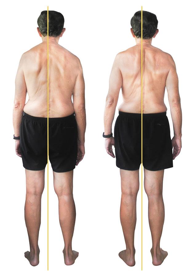 Allen posterior