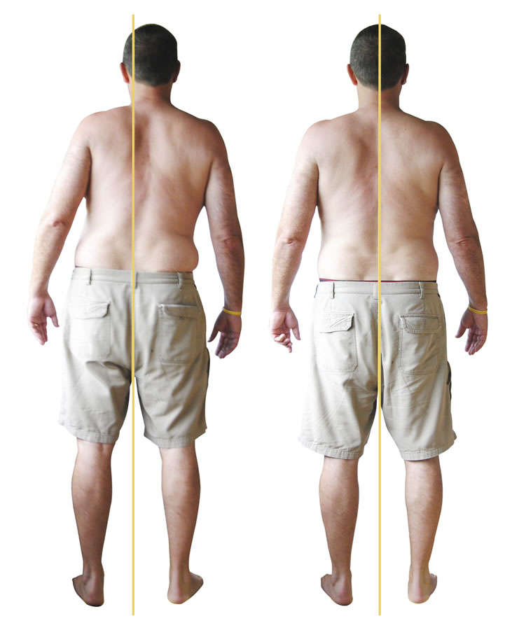 Back Strain client posterior before and after