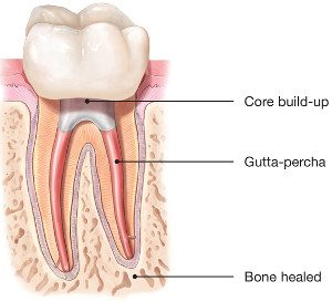 Healed-Tooth-Following-Root-Canal
