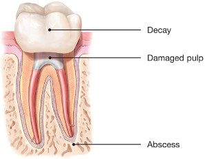 Root-Canal-Damaged-Pulp