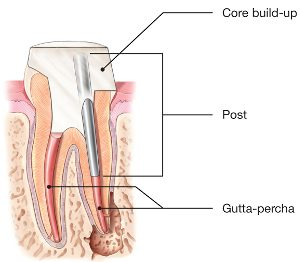 Root-Canal-Post