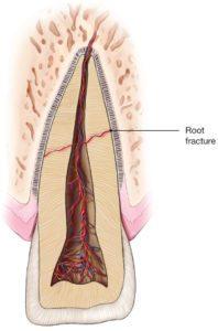 Root-Fracture
