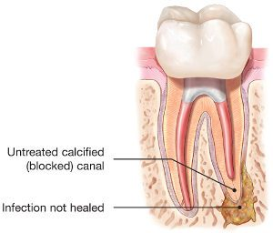 endodontic-retreatment-tooth-abscess
