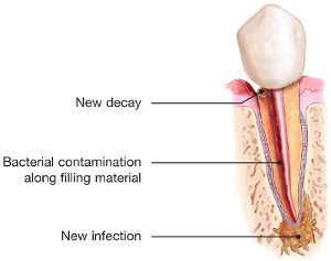 endodontic-retreatment-tooth-infection