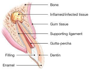 endodontic-surgery-explained