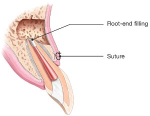 endodontic-surgery-root-end-filling