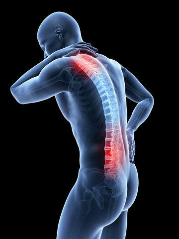 person with back and neck pain