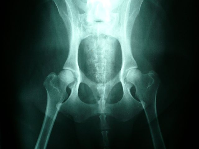 X-Ray of Normal Canine Hips