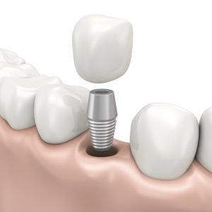 A dental implants diagram in West St Paul, MN