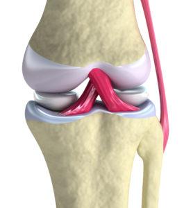 Arthritis Knee Pain Relief