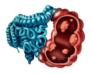 Colon Cancer Causes