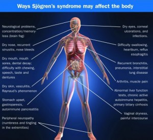 sjogrens affect body