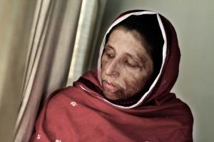 Sharmeen Saving-Face_Image_4-830x553