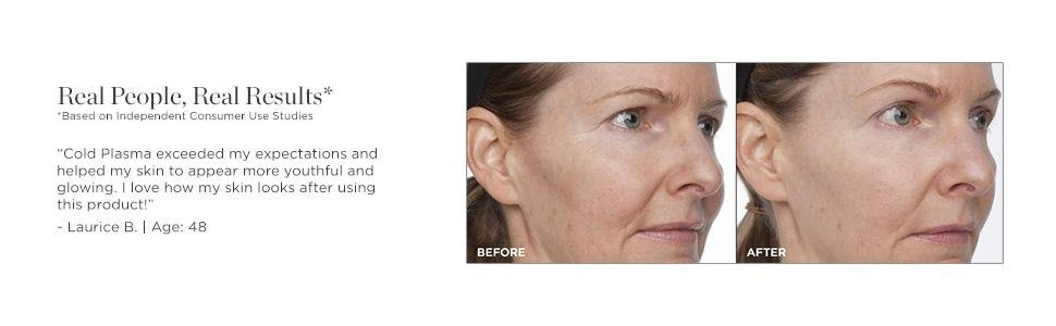 Perricone MD Cold Plasma - before and after