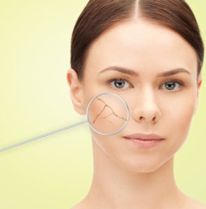 woman's face with dry dehydrated skin - hyaluronic acid helps!