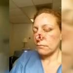 (Video) Women speaks out after nose bitten off by her Ex-Boyfriend.